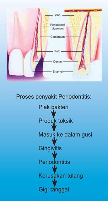proses_penyakit_periodontitis